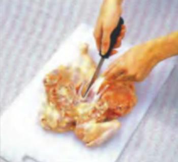 Удаление грудной кости
